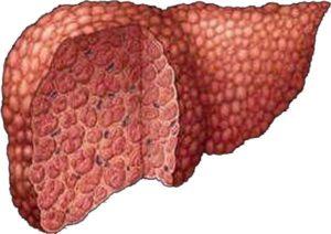 При циррозе печени терапию не проводят