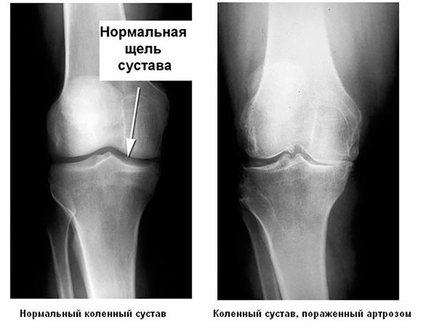 На фоне артроза существенное уменьшается пространство между двумя примыкающими к суставу костями