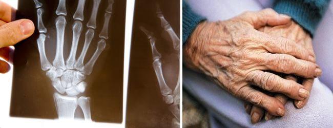 Тест АЦЦП применяется для диагностики ревматоидного артрита