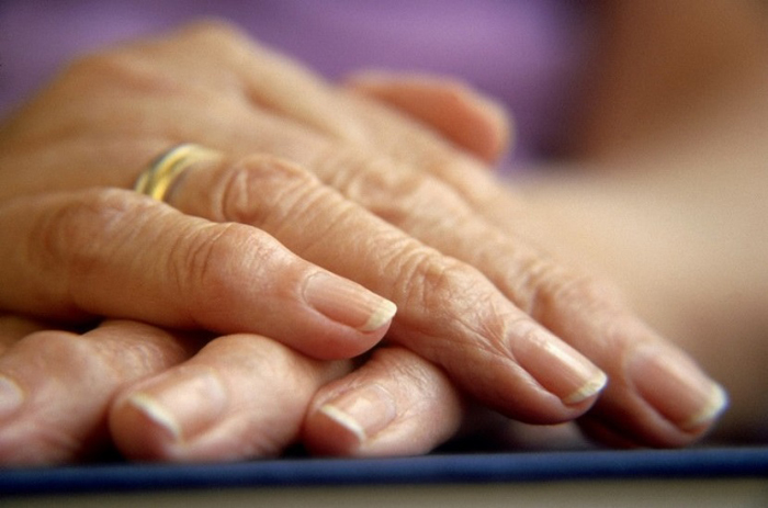 Димексид можно применять и при артрозе суставов пальцев