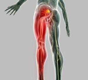 Как и чем лечится нейропатия седалищного нерва