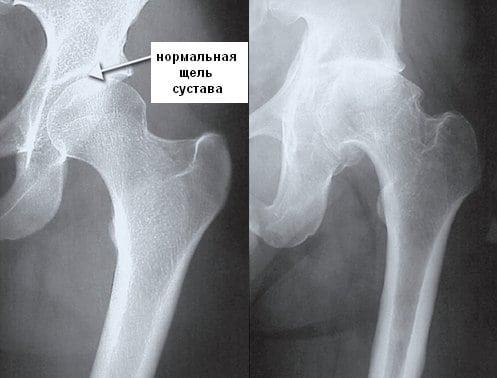 При коксартрозе изменяется размер суставной щели, на поздних стадиях зазор (щель) и вовсе может отсутствовать