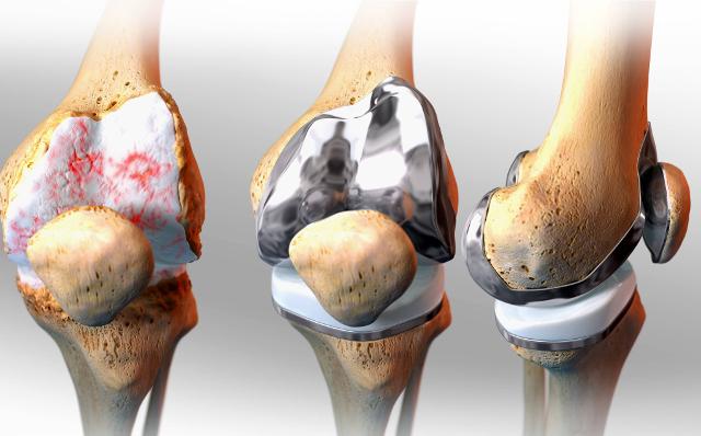 Артропластика коленного сустава металлоконструкцией