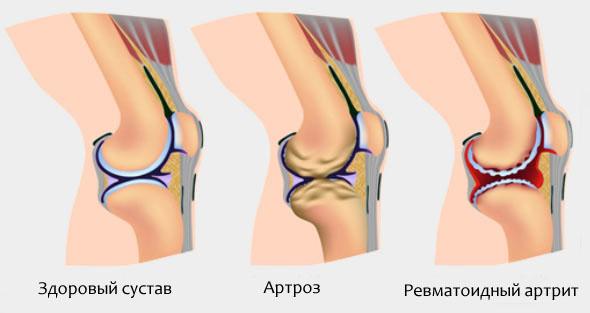 Здоровый коленный сустав и пораженный ревматоидным артритом или артрозом
