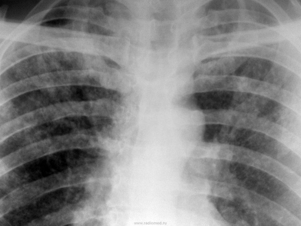 Туберкулёз на снимке
