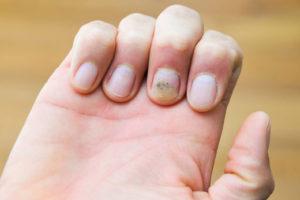 лечение подногтевой меланомы