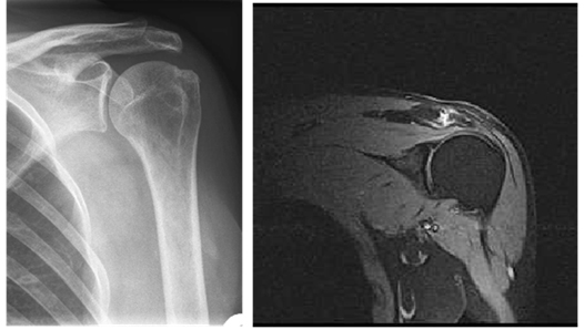 Рентгенография и МРТ плечевого сустава как аналог КТ