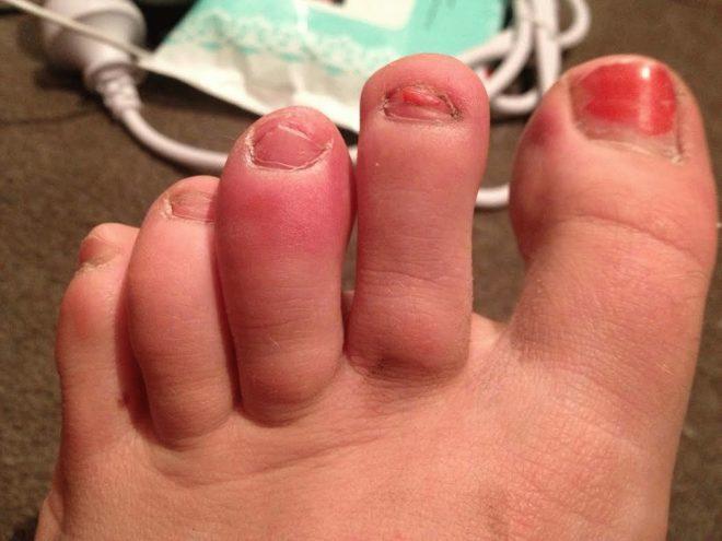 Отеки пальцев при артрите