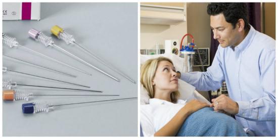 Иглы для спинальной анестезии при беременности