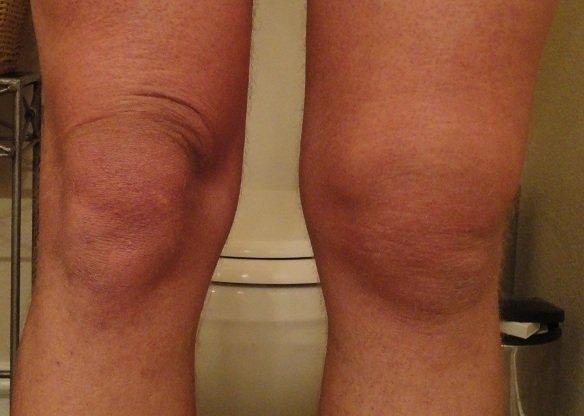 Деформация колена на начальных/средних этапах болезни Гоффа