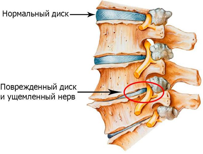Корешковый синдром нередко возникает на фоне межпозвонковых грыж