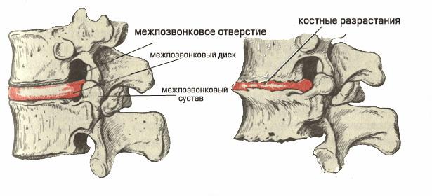 Развитие костных остеофитов при остеохондрозе