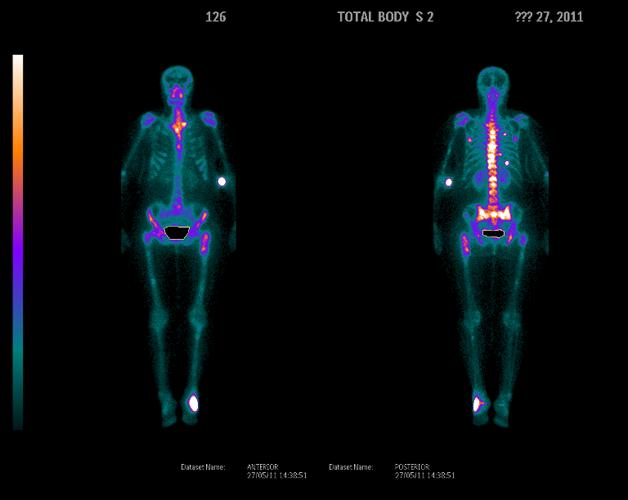 Исследование костей на сцинтиграфии