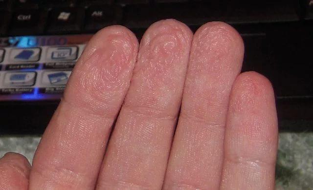 Учтите, Димексид может вызывать ожоги кожных покровов