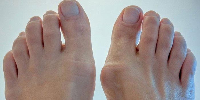 Помимо изменений в сустав стопы часто поражаются и суставы пальцев ног