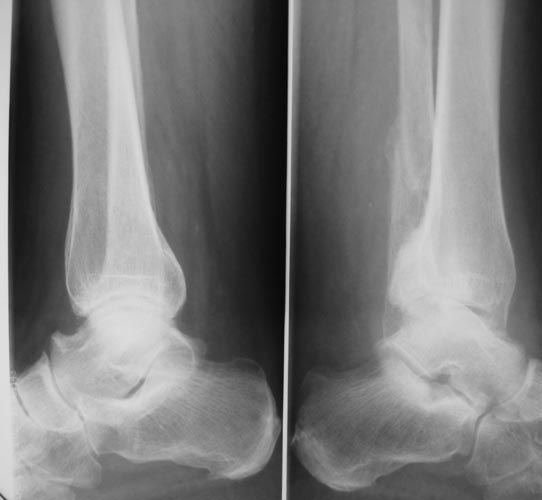 Подвывих голеностопа на рентгенографии