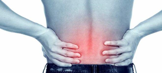 Сильнее всего боли при остеохондрозе поясницы