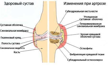 Здоровое и пораженное артрозом колено