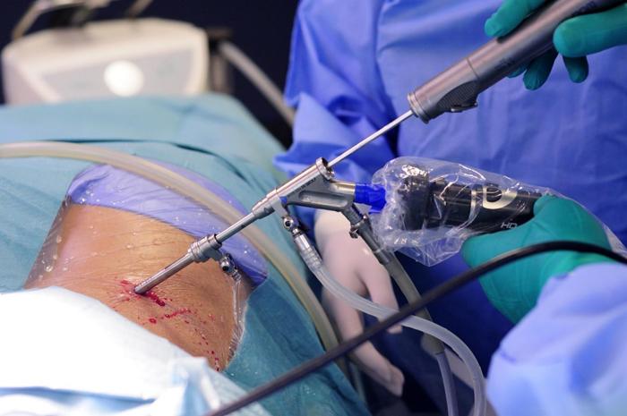 Эндоскопическая операция по удалению позвоночной грыжи