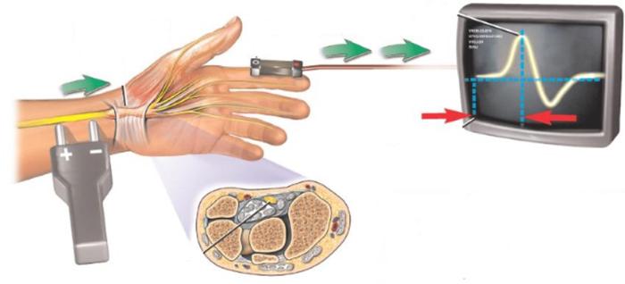 Принцип проведения электронейромиографии