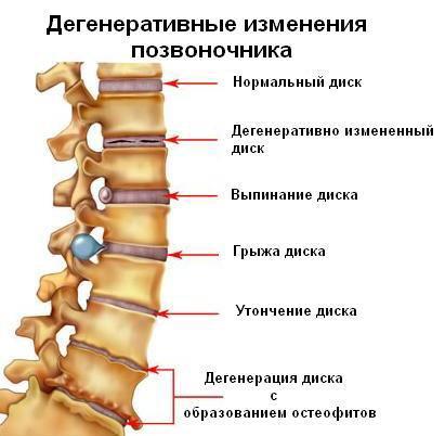Дегенеративные изменения позвоночника при остеохондрозе