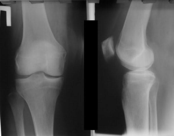 Пателлофеморальный артроз на рентгенографическом снимке