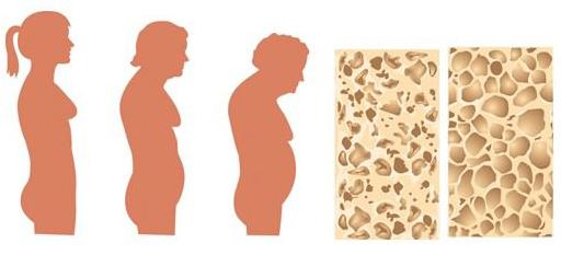 Стадии остеопороза у пожилых людей