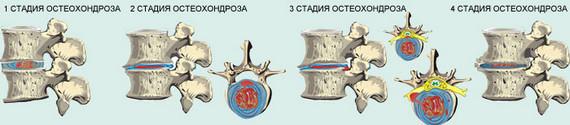 Стадии формирования остеохондроза позвоночника