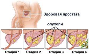 Как лечится доброкачественная гиперплазия предстательной железы