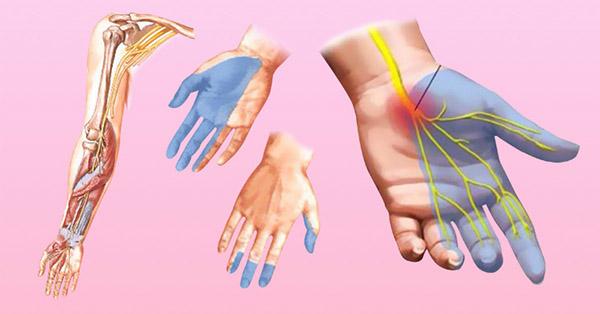 Онемение рук может быть вызвано не только остеохондрозом