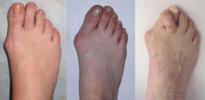 Постепенное прогрессирование артроза суставов пальцев ног