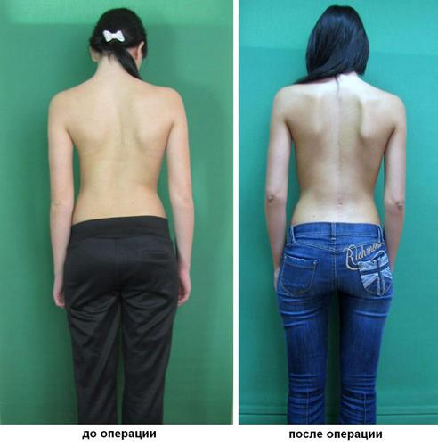 Операция при сколиозе: до и после