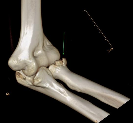 3D визуализация локтевого сустава на КТ