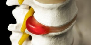 лечение гемангиомы шейного отдела позвоночника