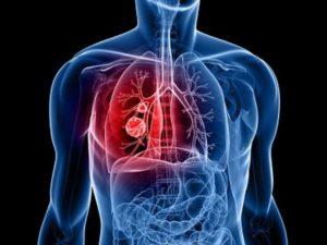 К каким последствиям приводит саркома легких и лечение