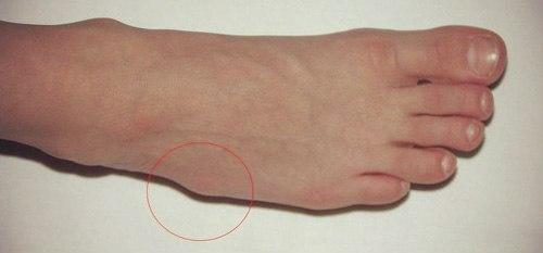 Деформации при остеопорозе стопы