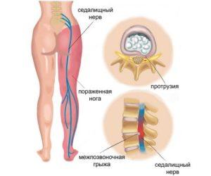 Ущемление седалищного нерва в тазобедренном суставе