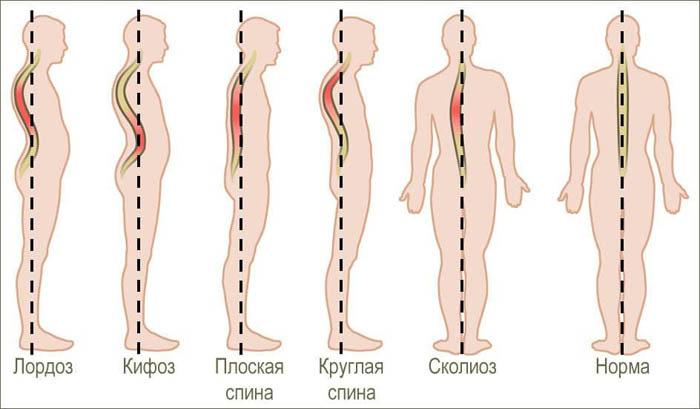 Отличие кифоза от других заболеваний позвоночника