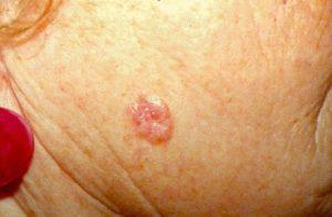 лечение базалиомы на лице