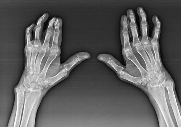 Артроз пальцевых суставов на рентгене