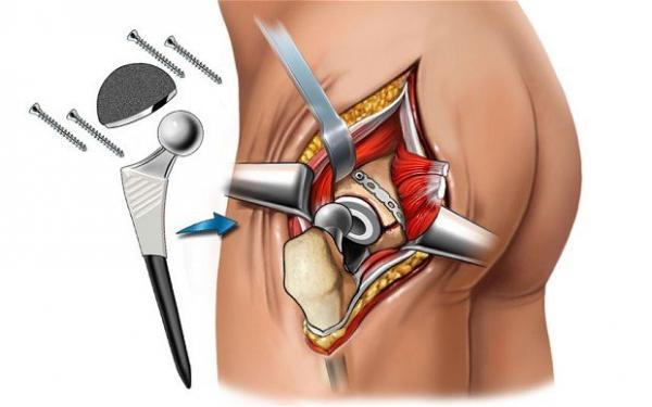 Артропластика тазобедренных суставов