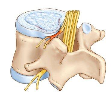 Компрессия спинномозговых нервов при межпозвонковой грыже