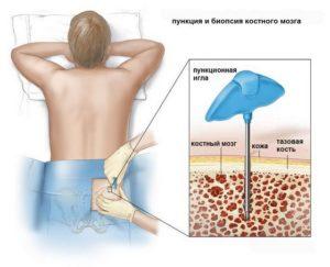 Как лечится лимфобластный лейкоз у взрослых