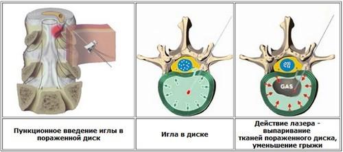 Проведение вапоризации грыжи спины