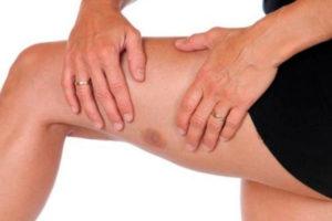 Как лечится опухоль костного мозга и последствия