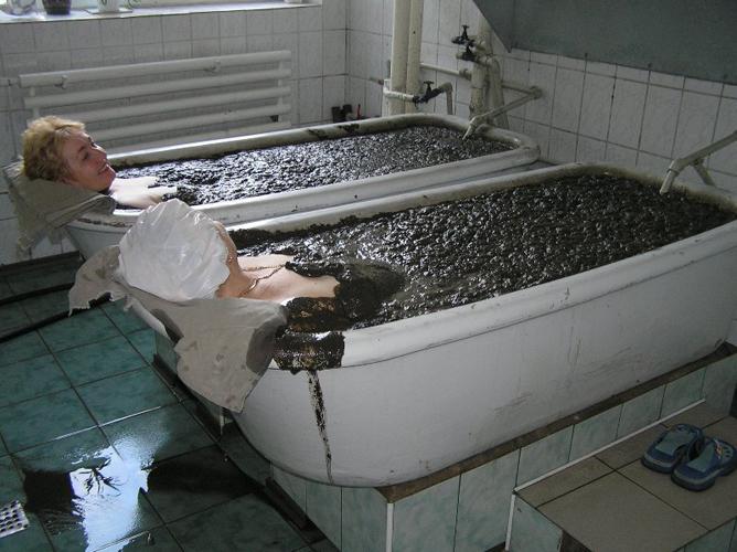 Грязевые ванны при остеохондрозе