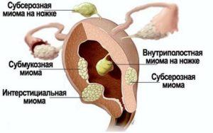 последствия субсерозной миомы