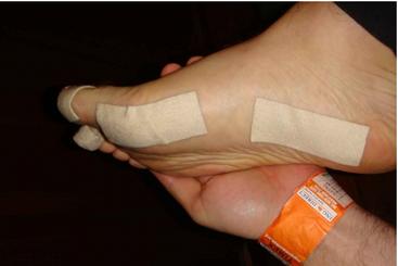Закрепление пластыря Hyperosteogeny на ногах
