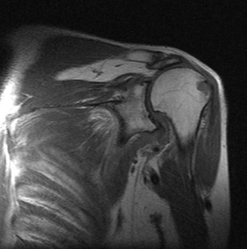 Снимок МРТ плечевого сустава