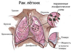 аденокарцинома легкого